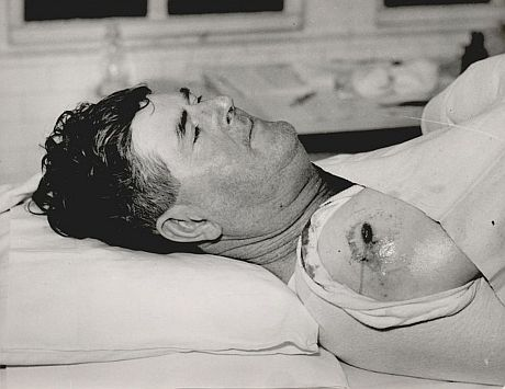 Oscar-Morgan-Bullet-Wound